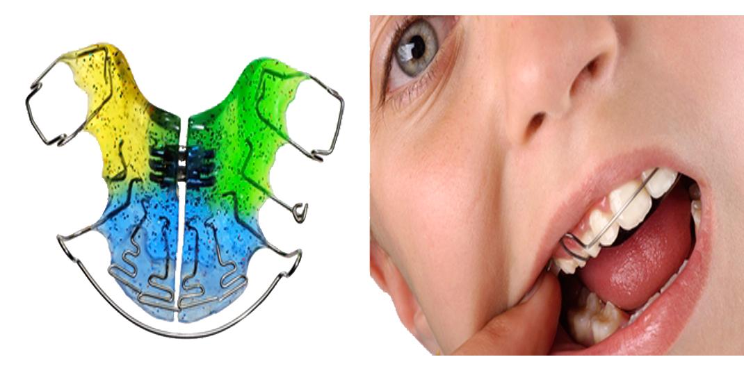 Clínica dental poble sec cardedeu